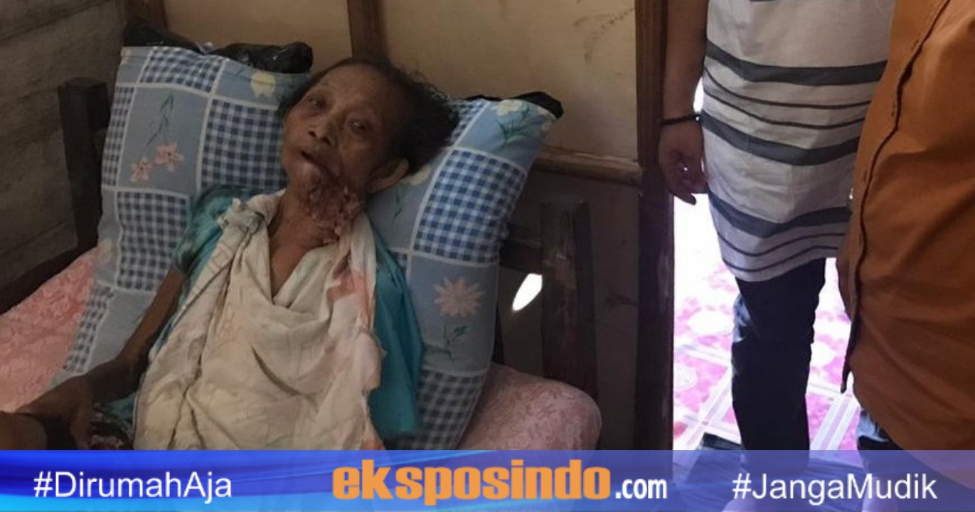 Tak Punya Biaya, Penderita Kanker Mulut di Luwu Ini ...