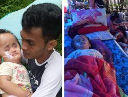 Menderita Hydrochepalus Sejak Kecil, Balita Ini Dirawat Ibunya di Pengungsian Karena Gempa